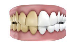 proč nemáte bílé zuby